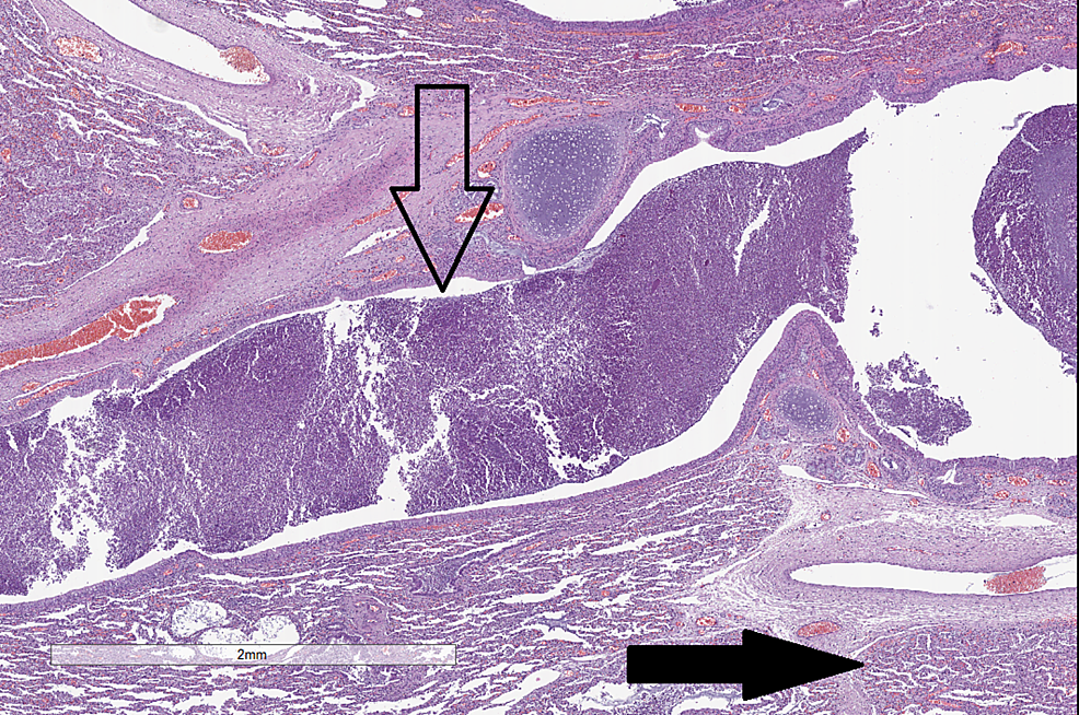 Histopathological-changes-in-the-lungs.