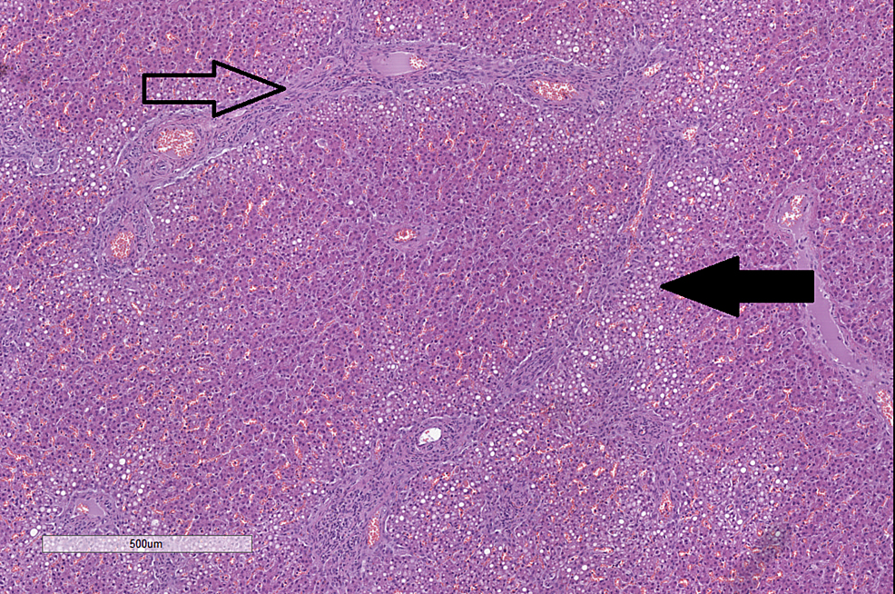 Histopathology-of-changes-in-the-liver.