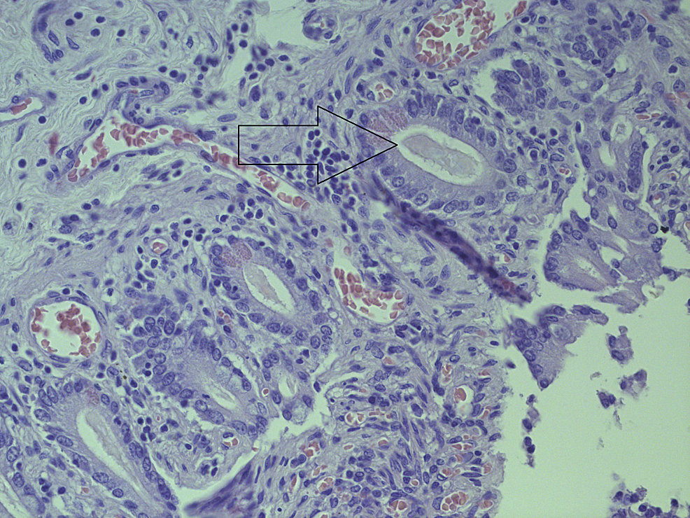 Histopathology-of-changes-in-the-small-intestine.