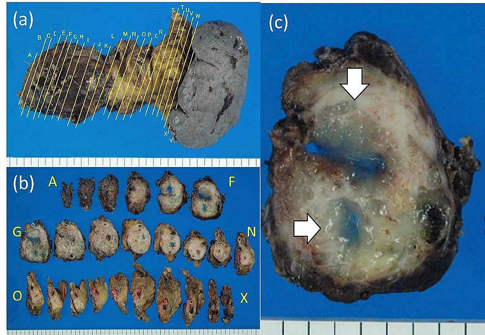 Macroscopic-findings-of-resected-specimen