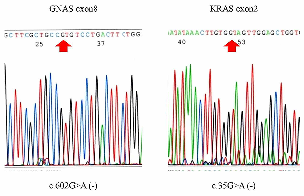 Results-of-sequencing-of-the-GNAS-and-KRAS-genes