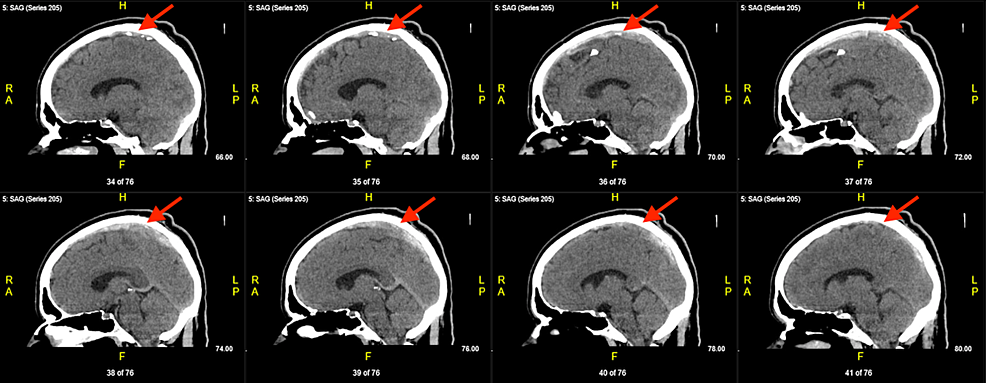 Serial-sagittal-non-contrast-computed-tomography-(CT)-demonstrating-a-left-to-right-progression-of-sinuses-with-thrombus