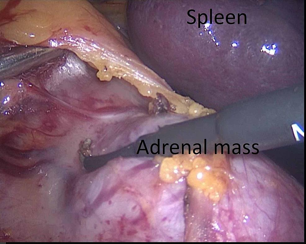 The-mobilization-of-splenorenal-ligament