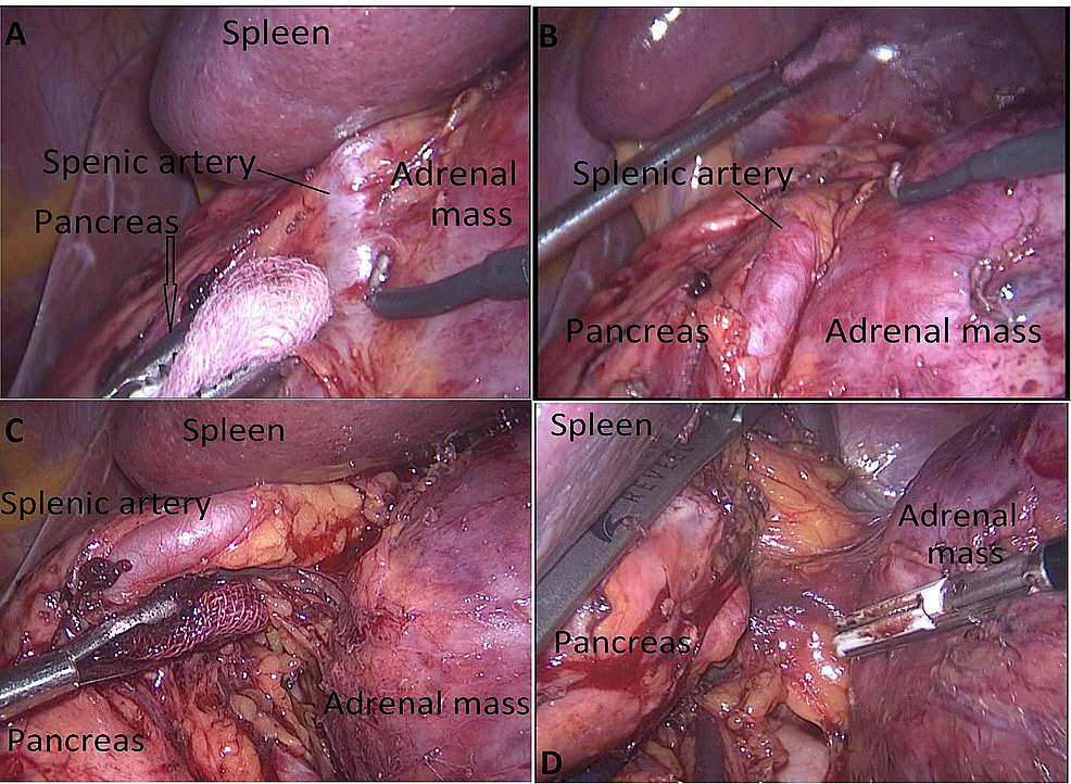 The-lesion-localization-in-the-posterior-of-the-tail-of-the-pancreas-and-gastrocolic-area-(A),-separation-of-the-adrenal-lesion-from-pancreatic-tissue-and-splenic-artery-and-vein-(B,C),-replacement-of-retractor-(D)
