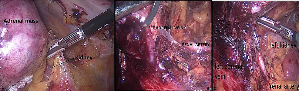 The-closure-of-the-gerota-fascia-(A),-identification-of-left-renal-artery-(B),-ligation-of-the-left-adrenal-vein-(C)--