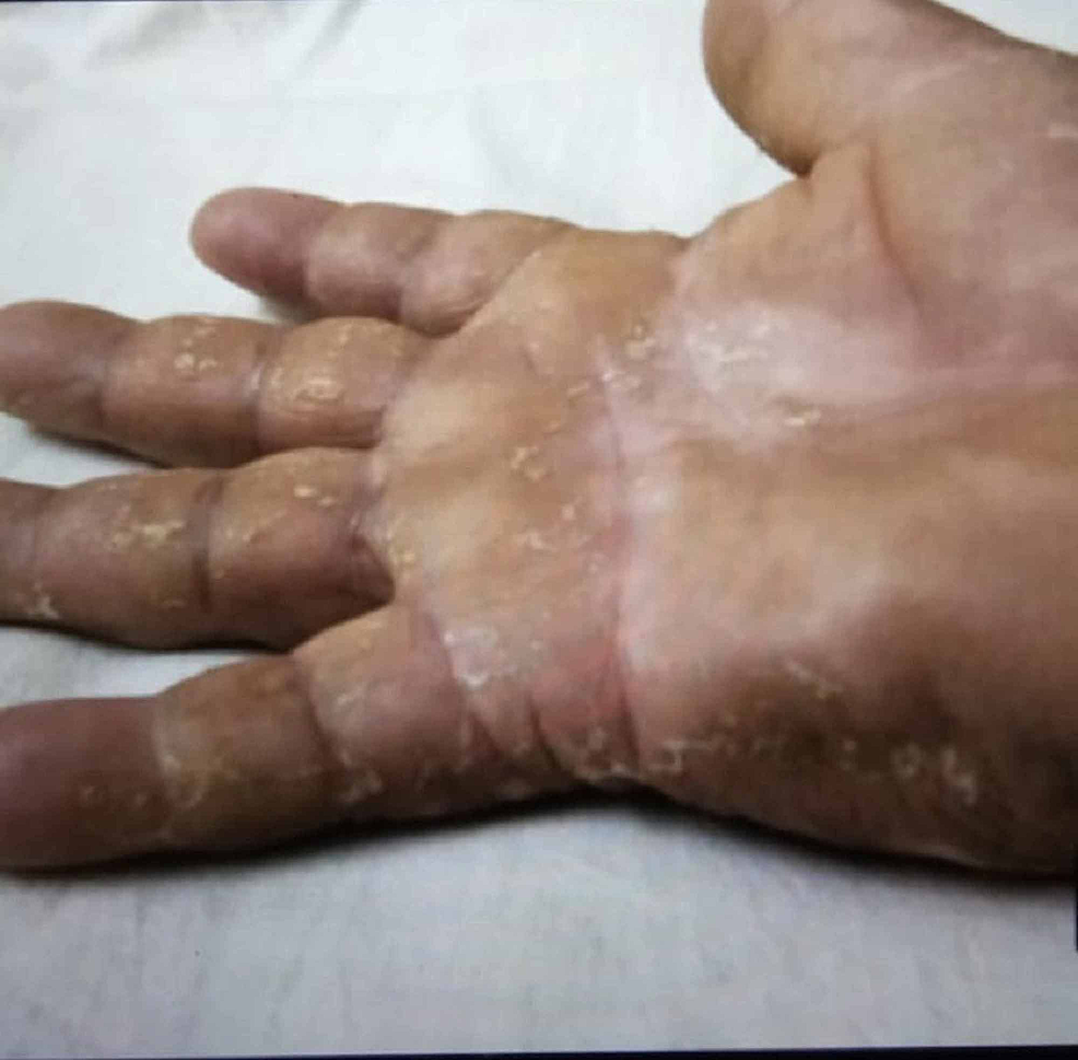 Edematous-erythema-with-desquamation-of-the-palms