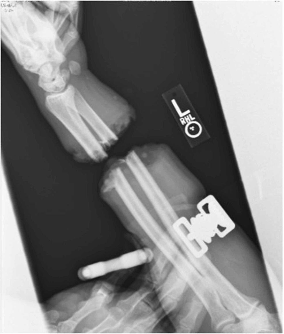 Forearm-X-rays
