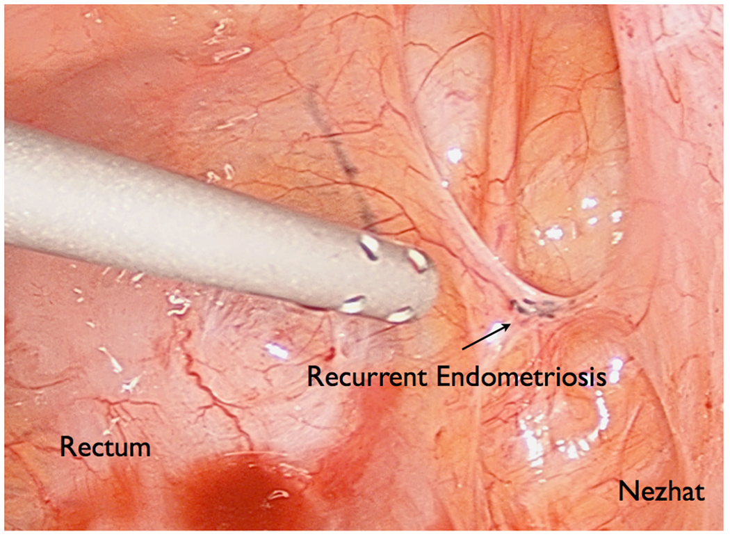 endometriosis - photo #47