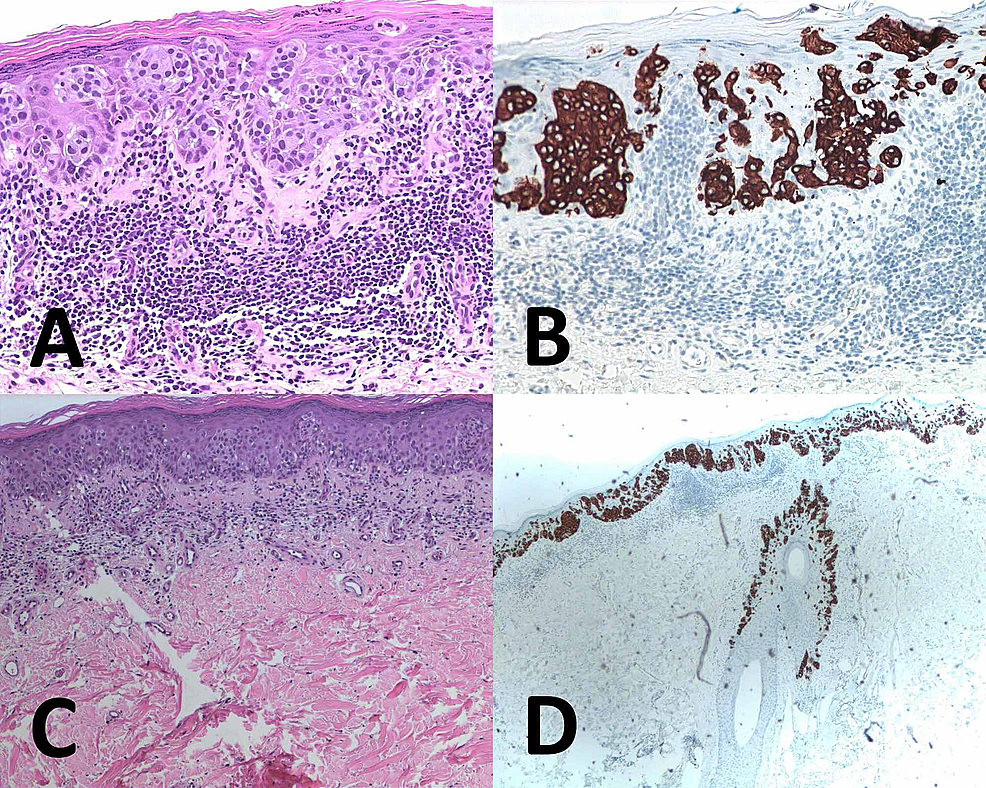 Right-inguinal-skin-immunohistochemical-stains
