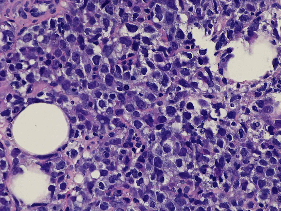 Hematoxylin-and-Eosin-staining-at-40x-magnification-of-the-core-biopsy-specimen-obtained-from-the-pancreatic-mass,-showing-large-cells-with-vesicular-chromatin-and-small-nucleoli.-Pathology-is-consistent-with-a-diffuse-large-B-cell-lymphoma.