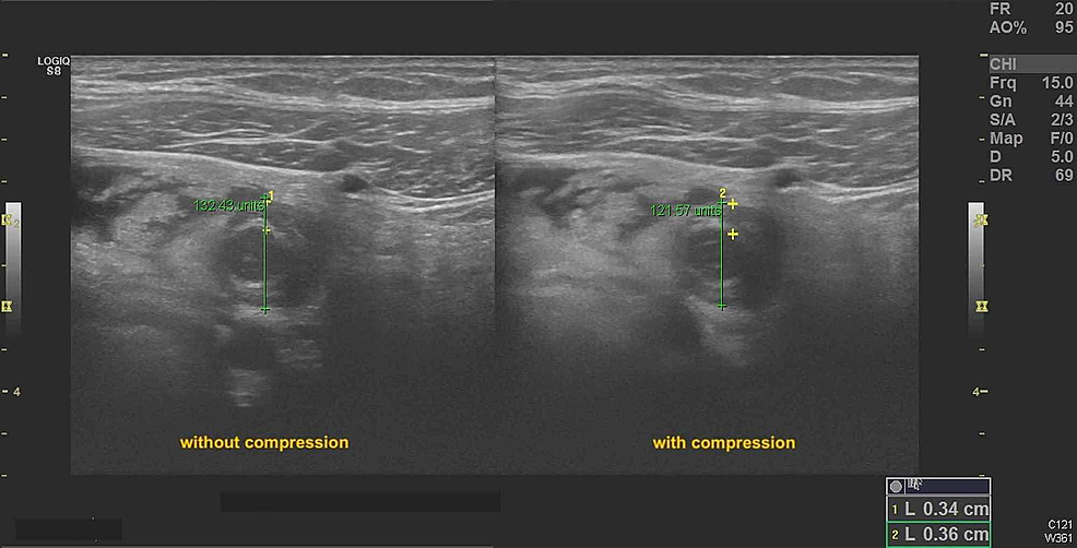 Sonogram-demonstrating-minimal-compressibility-of-appendix-on-transverse-view.-Note-the-depth-of-the-noncompressed-and-compressed-appendix-are-almost-equal.-
