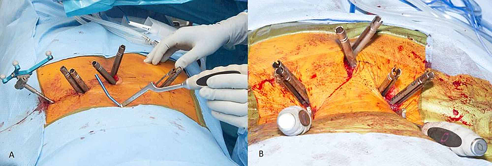 (A-)Rod-bent-using-computer-control-(NuVasive-Bendini)-attached-to-rod-gripper.-(B)-Surgical-setup-for-percutaneous-instrumentation-and-reduction.-Rods-in-place-with-rod-grippers-sticking-out-of-wound