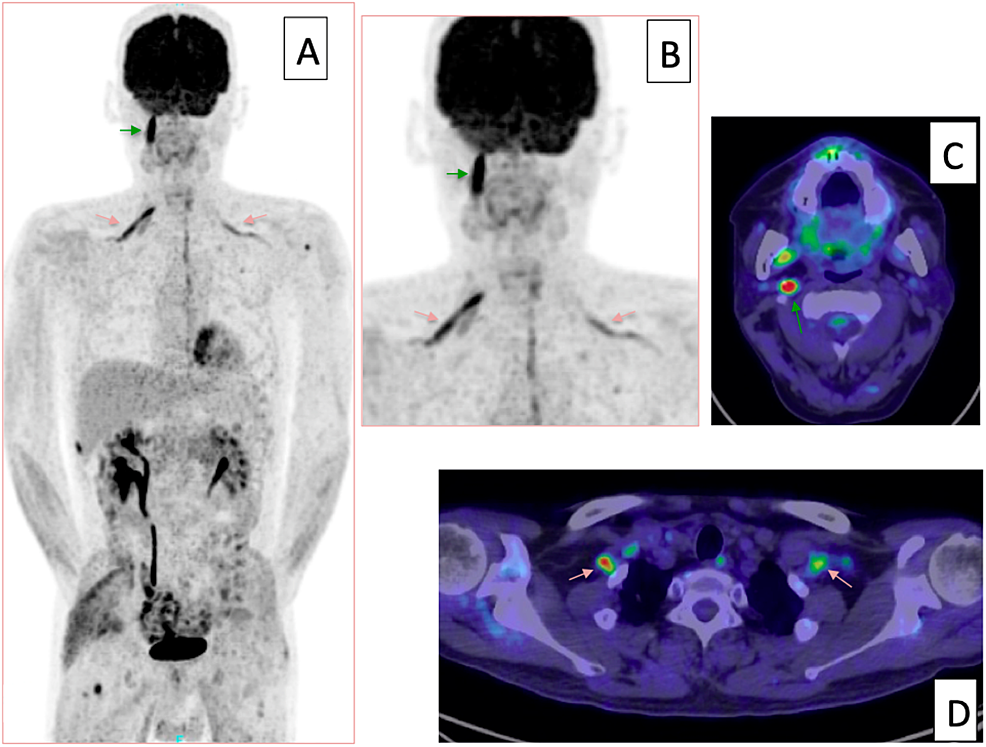 Subsequent-fluorodeoxyglucose-positron-emission-tomography-(FDG-PET)-five-weeks-after-craniospinal-irradiation