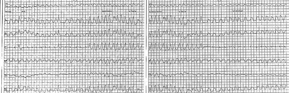 Telemetry-strip-demonstrating-nonsustained-ventricular-tachycardia