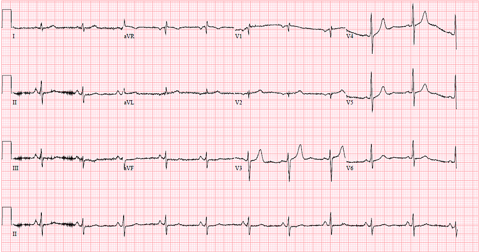 Baseline-12-lead-electrocardiogram-from-admission