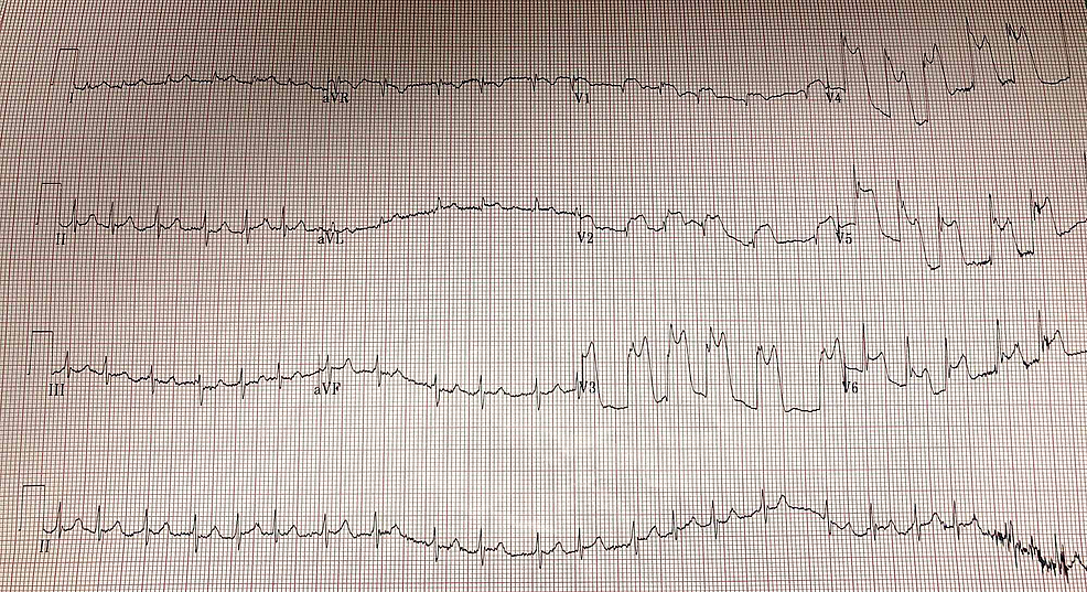 Atrial-fibrillation-with-rapid-ventricular-response-and-significant-ST-elevations-in-anteriolateral-leads-(V1-V6)