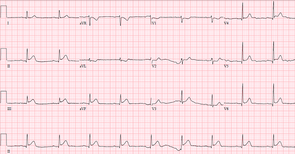 12-lead-echocardiogram-demonstrating-ST-elevation-in-inferolateral-leads-(II,-III,-aVF,-V5,-V6)