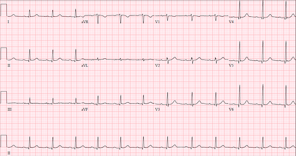 12-lead-echocardiogram-post-nitroglycering-administration-with-resolution-of-inferolateral-ST-elevations