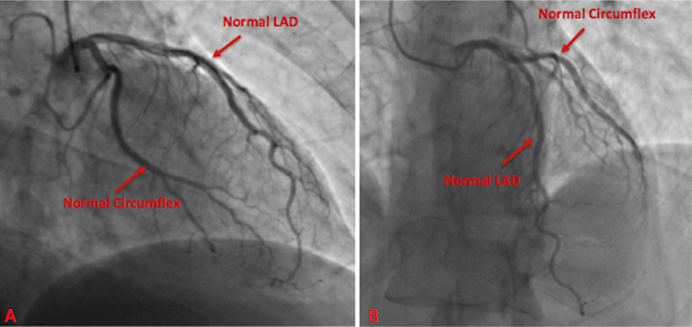 Cardiac-catheterization-at-two-viewing-angles-demonstrated-negative-disease-in-the-left-circumflex-artery-and-left-anterior-descending-artery