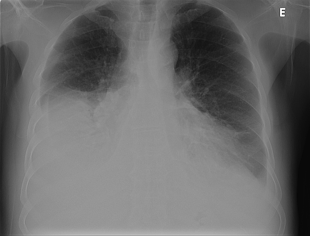Chest-radiography,-posteroanterior-view