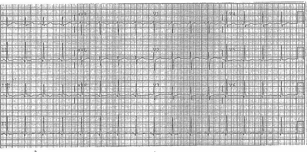 Normal-EKG