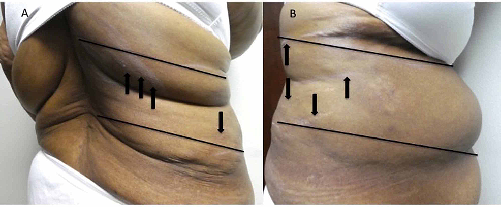 Postherpetic-pruritus-extending-from-the-middle-of-the-back-to-the-abdomen-on-the-right-side-of-a-57-year-old-woman