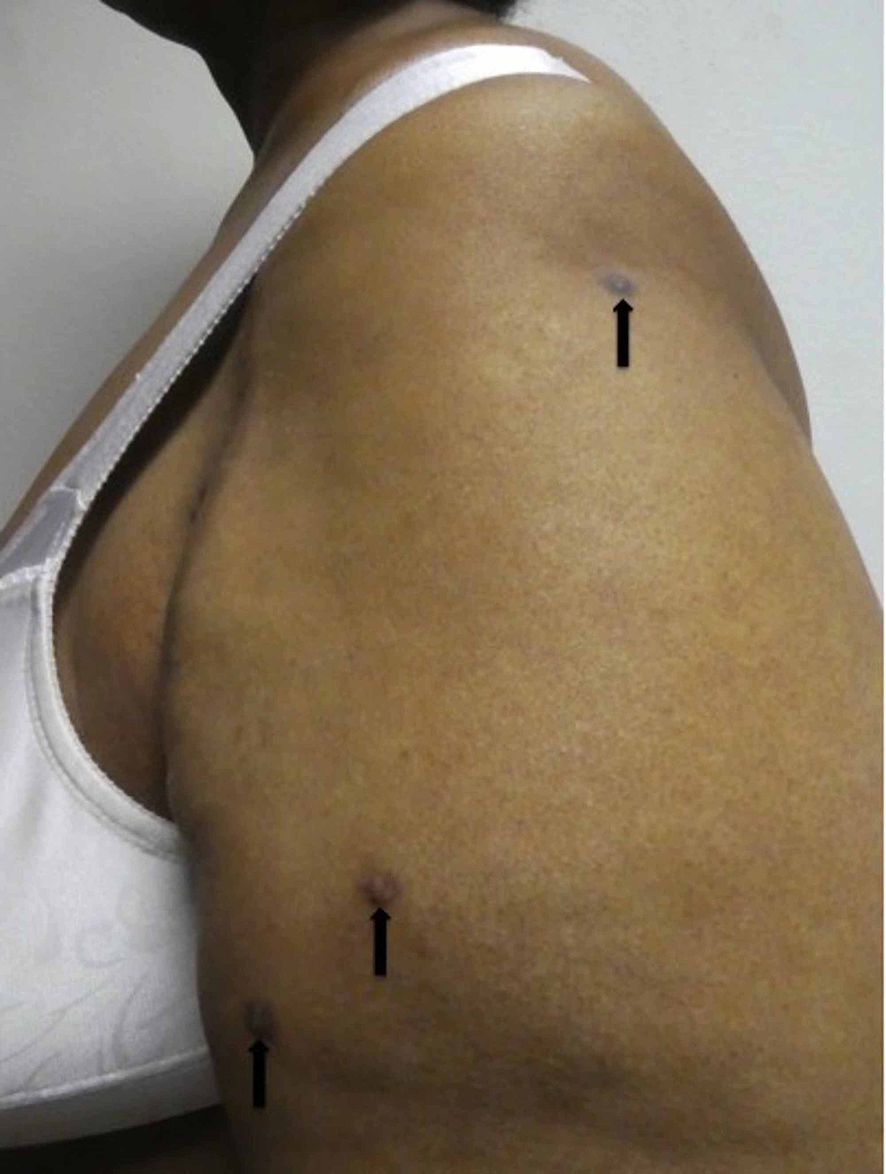 Dermatofibromas-on-the-left-arm-of-57-year-old-woman-with-postherpetic-pruritus