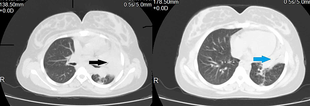 Computed-tomography-of-the-chest-showing-left-upper-lobe-(black-arrow)-and-lingular-lobe-(blue-arrow)-consolidation.-