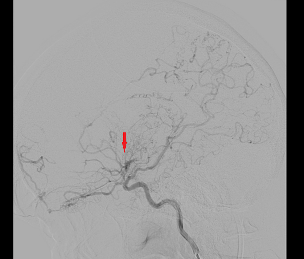 Left-sided-cerebral-angiogram-demonstrating-occlusion-past-the-origin-of-the-anterior-choroidal-artery-with-collaterals-and-engorgement-of-the-opthalmic,-anterior-choroidal,-and-lenticulostriate-arteries-(red-arrow).