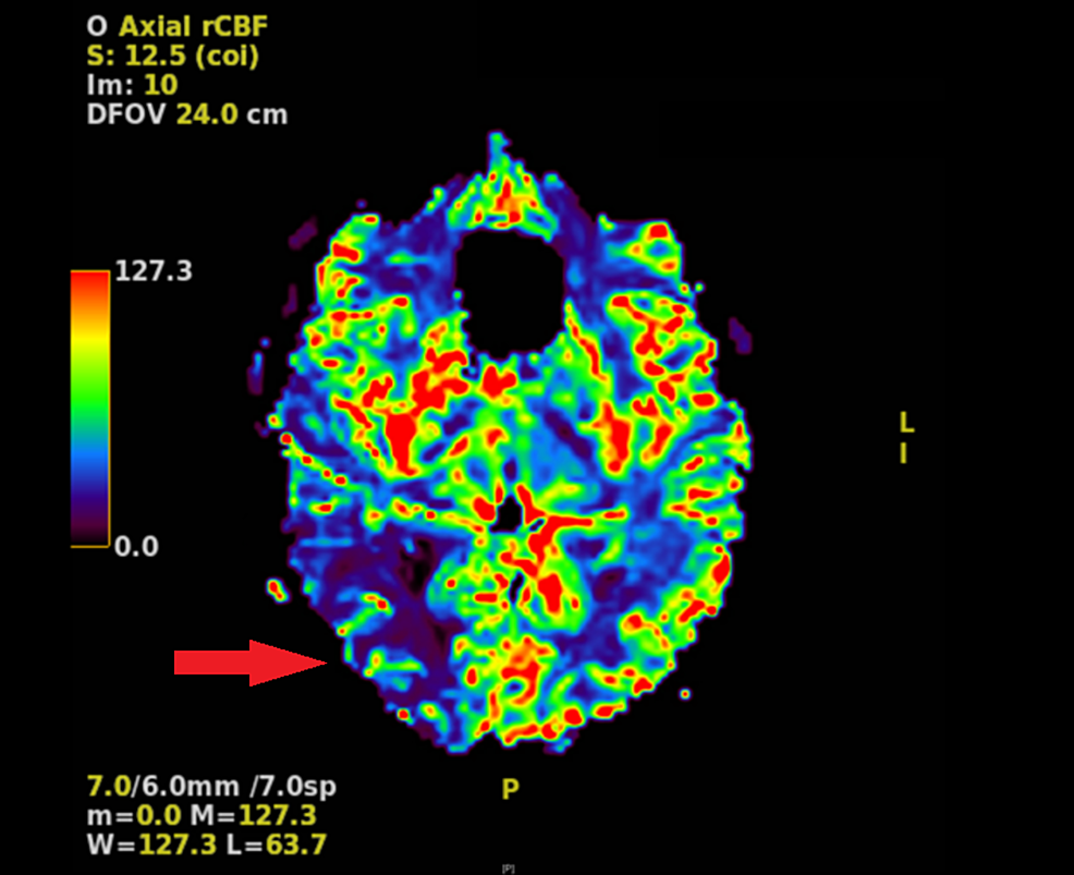 MRI-perfusion-demonstrating-decreased-cerebral-blood-flow-in-the-posterior-right-hemisphere-compared-to-the-left-hemisphere-(red-arrow).