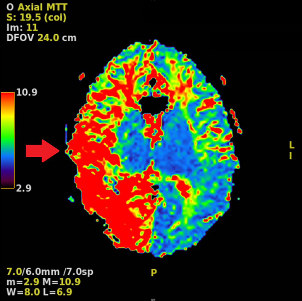 MRI-perfusion-study-demonstrating-prolonged-mean-transit-time-throughout-the-right-hemisphere-relative-to-the-left-hemisphere,-more-predominant-posteriorly-(red-arrow).