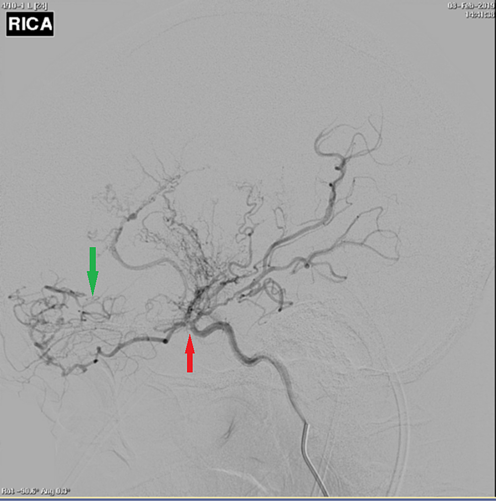 Right-sided-cerebral-angiogram-demonstrating-occlusion-past-the-origin-of-the-anterior-choroidal-artery-(red-arrow).-Proliferation-of-branches-off-the-anterior-choroidal,-distal-opthalmic,-lenticulostriate,-and-posterior-communicating-artery-is-the-only-source-of-supply-to-the-hemisphere-(green-arrow).-