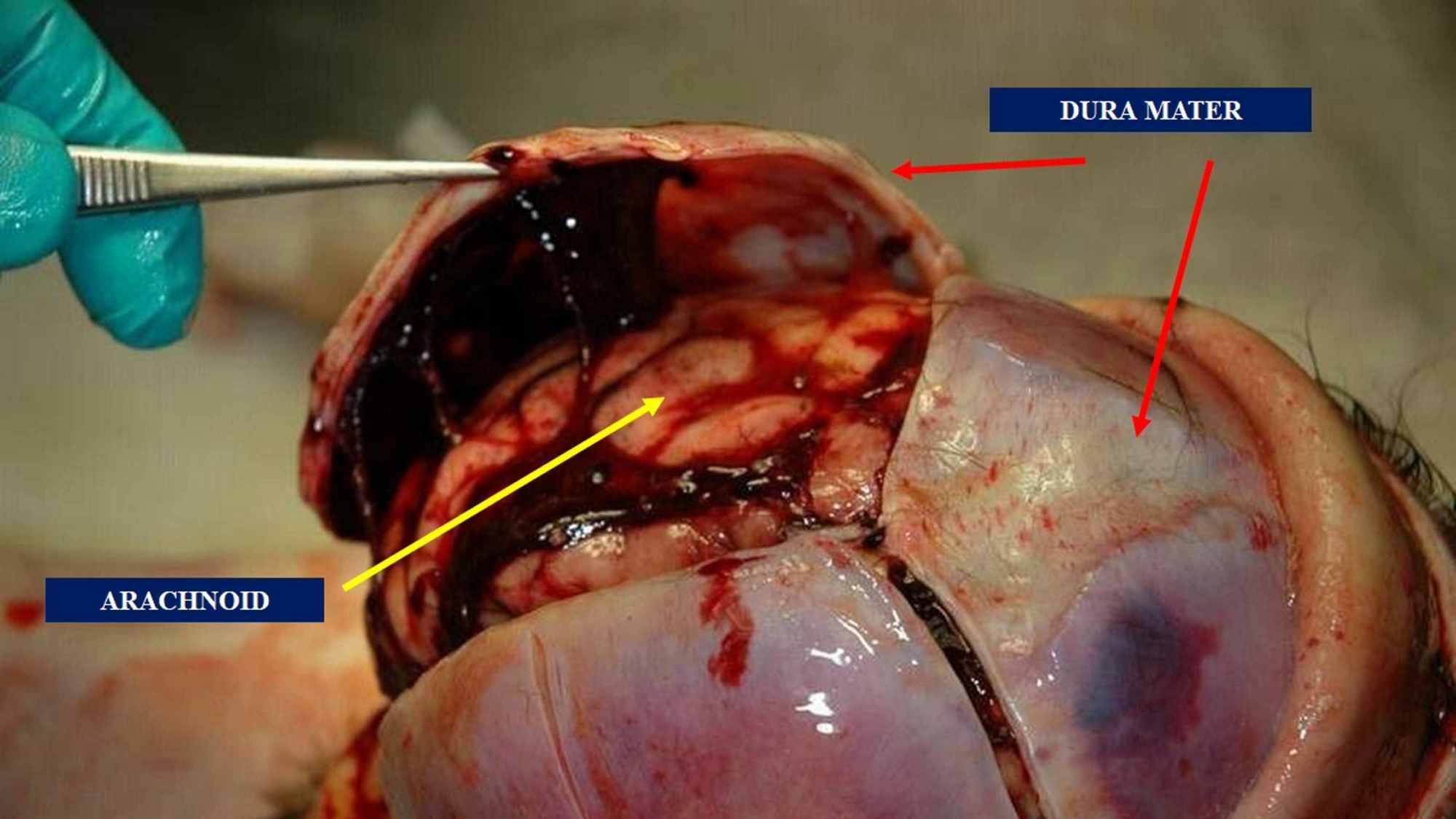 Cureus   Tentorium Cerebelli: Muscles, Ligaments, and Dura ...