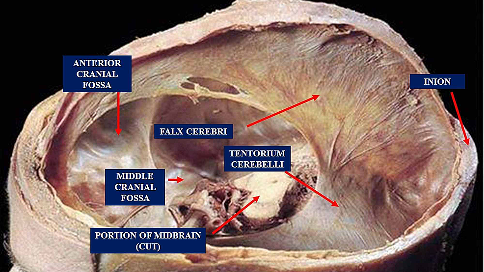 The-figure-shows-the-tentorium-cerebelli,-the-falx-cerebri-and-other-portions-of-the-skull.-The-tentorium-cerebelli-is-located-in-the-posterior-cranial-fossa;-it-is-a-semi-circular-transverse-septum-covering-the-cerebellum,-with-occipital-lobes-of-the-cerebral-hemispheres-lying-on-it-