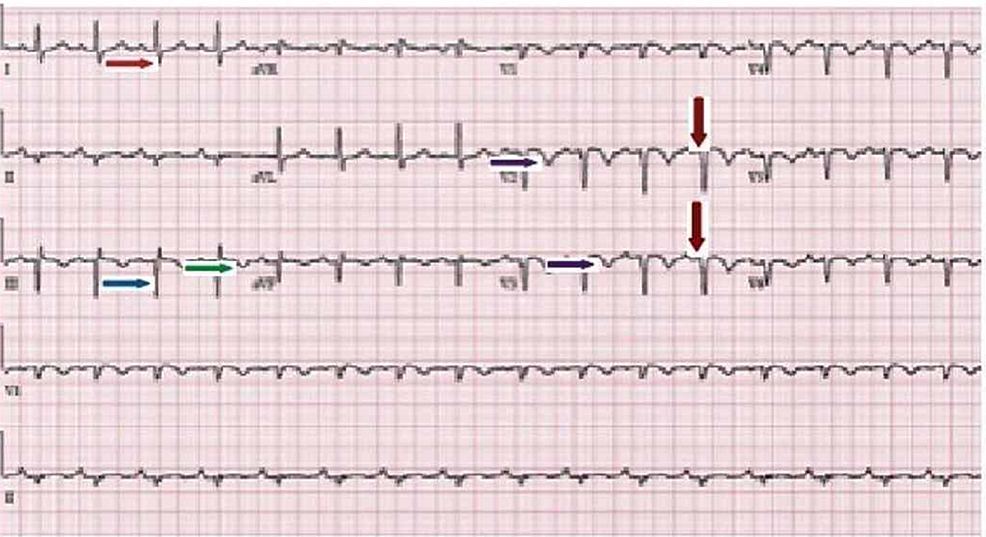 Electrocardiogram-(EKG)-demonstrated-normal-sinus-rhythm-with-Q-waves-(blue-arrow)-in-the-inferior-leads-(II,-III,-and-aVF),-a-prominent-S-wave-(red-arrow)-in-the-lead-I,-and-T-wave-inversion-(green-arrow)-in-the-lead-III.-Diffuse-T-wave-inversions-(purple-arrows)-and-poor-R-wave-progression-(brown-arrows)-were-noted-in-anterior-precordial-leads.