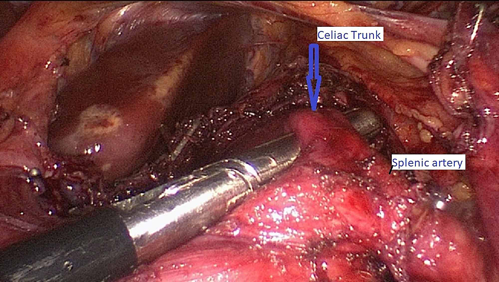 Intraoperative-transection-of-the-median-arcuate-ligament,-arrow-showing-decompressed-celiac-trunk
