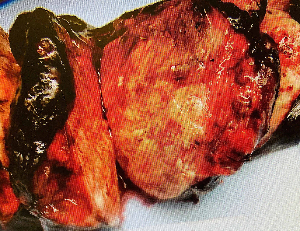 Gross-examination-of-a-lobectomy-specimen-showing-mass-lesion.