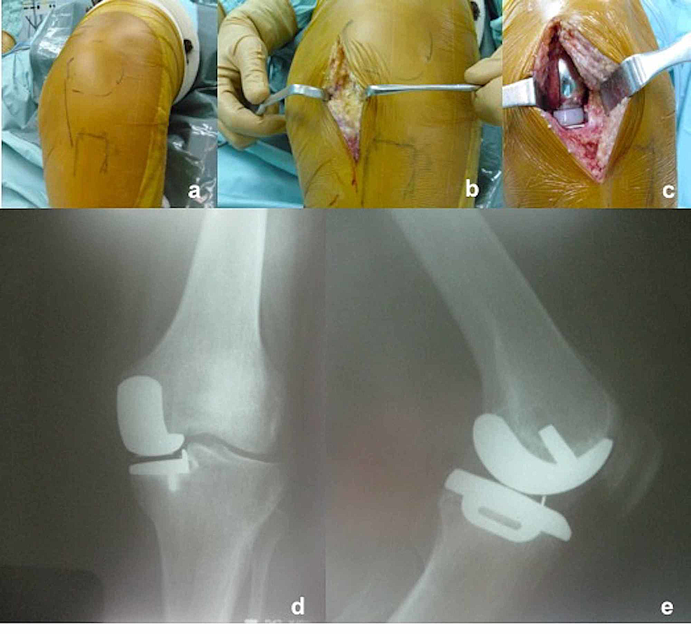 a)-Incision-marked-after-draping,-b)-medial-parapatellar-incision-and-arthrotomy,-c)-placement-of-the-implants,-and-d,e)-postoperative-anteroposterior/lateral-radiographs-of-the-knee