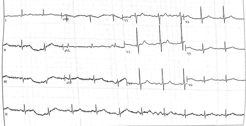Electrocardiogram-on-admission.-Mild-regional-ST-segment-changes-present,-most-noticeable-in-V2.