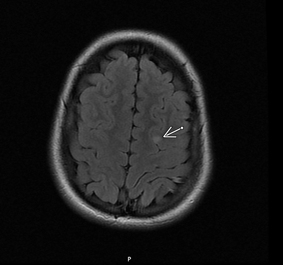 MRI--brain-without-contrast:-the-arrow-shows-the-lesion-location