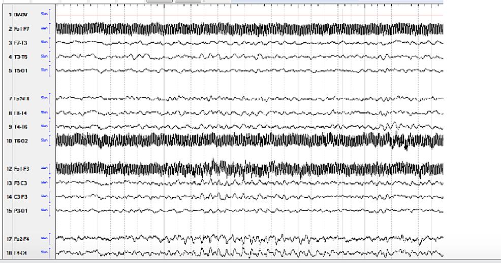 Continuous-electroencephalogram