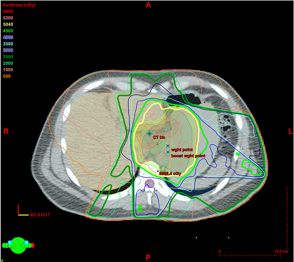 Isodose-lines-of-radiation-treatment.