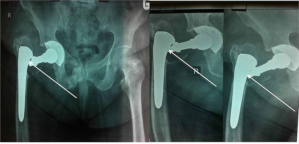 Radiographs-show-the-dissociation-of-the-femoral-neck-stem-interface-after-the-fall-(white-arrows).