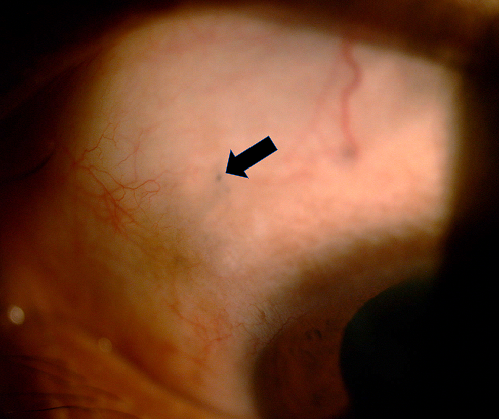 Photograph-of-the-anterior-segment-of-the-left-eye,-showing-a-small-hyperpigmented-area-(arrow)-at-the-10-o'clock-position-of-the-sclera.