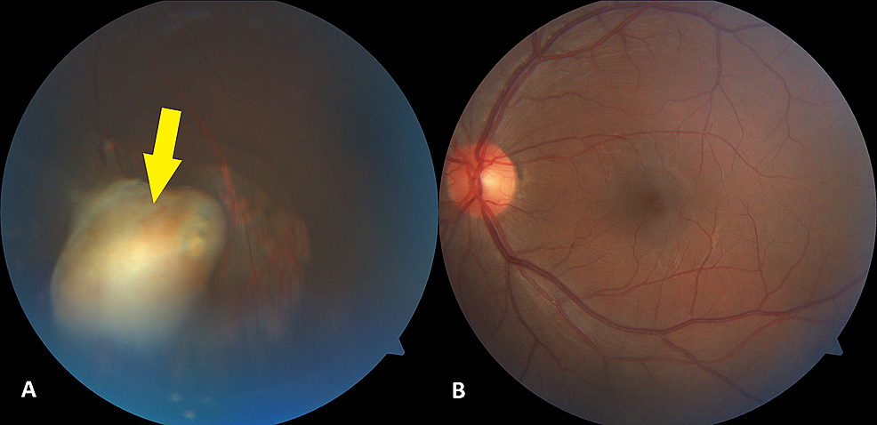 Photographs-of-the-posterior-segment-of-the-left-eye,-showing-(A)-an-encapsulated-lesion-(arrow)-surrounded-by-areas-of-retinal-atrophy-in-the-inferior-intravitreal-cavity-and-(B)-a-normal-appearing-posterior-pole.-