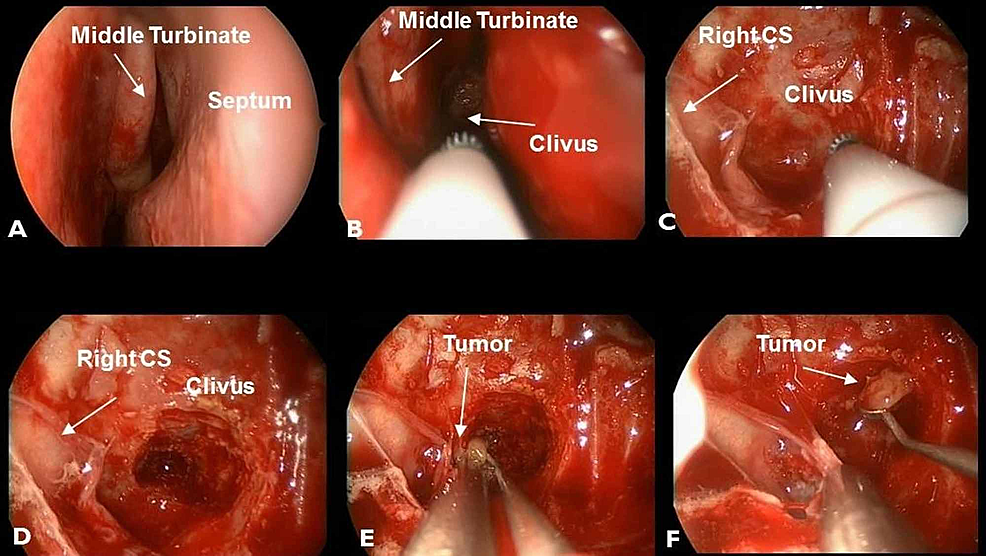 Endonasal-endoscopic-approach-to-the-clivus