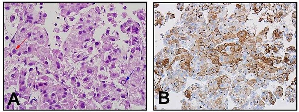 Pathology-results