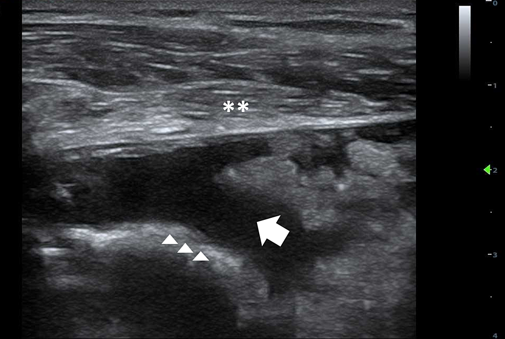 Right-shoulder-ultrasound-showing-fluid-collection