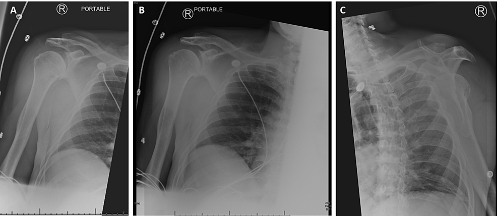Right-shoulder-X-ray-of-the-patient