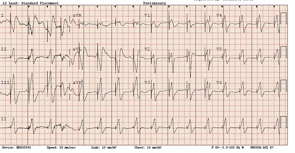Presenting-EKG-showing-a-ventricularly-paced-rhythm-with-capture